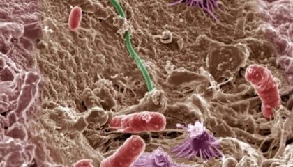 С каждым годом все больше исследователей полагает, что микробы помогут накормить мир. Появилось немало подобных стартапов: AgBiome, Indigo, Maronne Bioinnovations и New Leaf Symbiotics