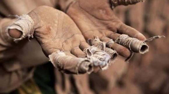 Проблемы фермеров: кредитование, себестоимость производства, земельные вопросы фото, иллюстрация